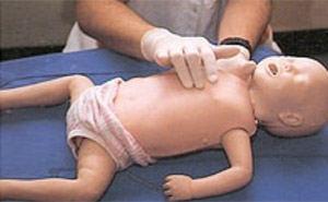 עיסוי החייאה תינוק